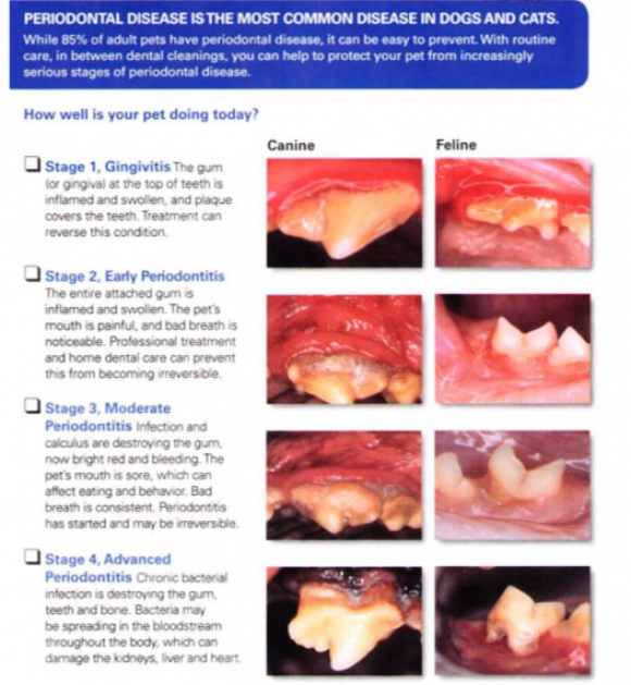 Periodental Disease Chart